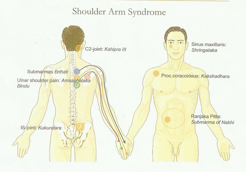 Sindrome della spalla
