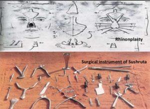 strumenti di chirurgia sushruta